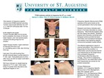 FSM Restores Activity to Trapezius for 67 y.o. Male by Marilyn Miller and Carolyn R. McMakin